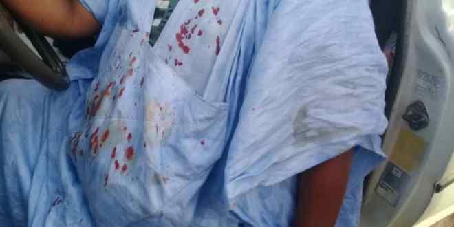 صورة بلطجية upr بواد الناكه يعتدون على مناضلي تواصل بالضرب(تفاصيل)